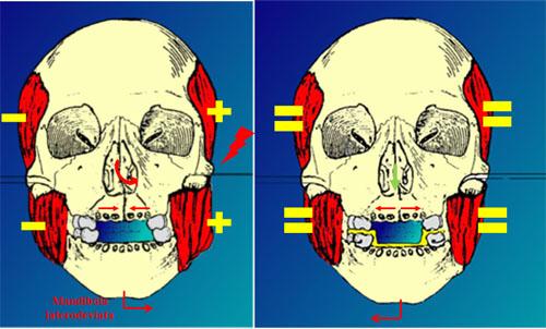 Fig. 2-3 crani