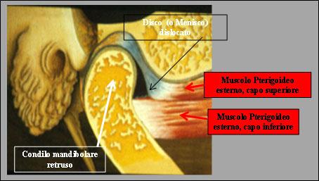 Fig.4 Menisco dislocato