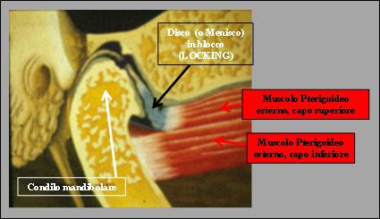 Fig.5 Locking