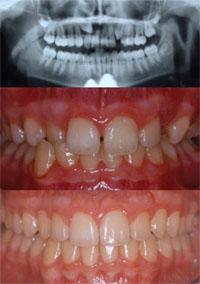 Fig.7 caso clinico Marinello